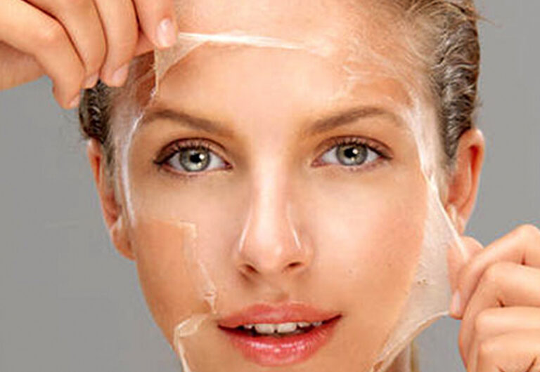 -skin peeling SERENITY Medical Clinic
