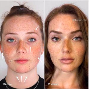 facelift surgery